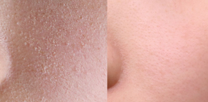 B&A_Dead skin cell care